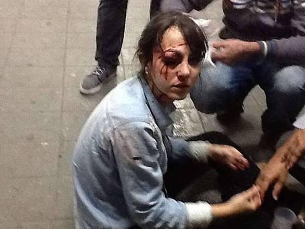 Jornalista ferida em São Paulo