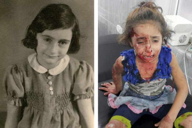 Anne Frank (à esq) e Rouwaida Hanoun, ferida na Síria (fotos: Anne Frank Fonds e Getty Images)